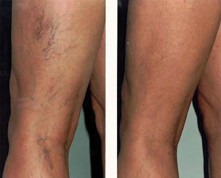 Example of red veins and facial thread veins treatment (before and after)