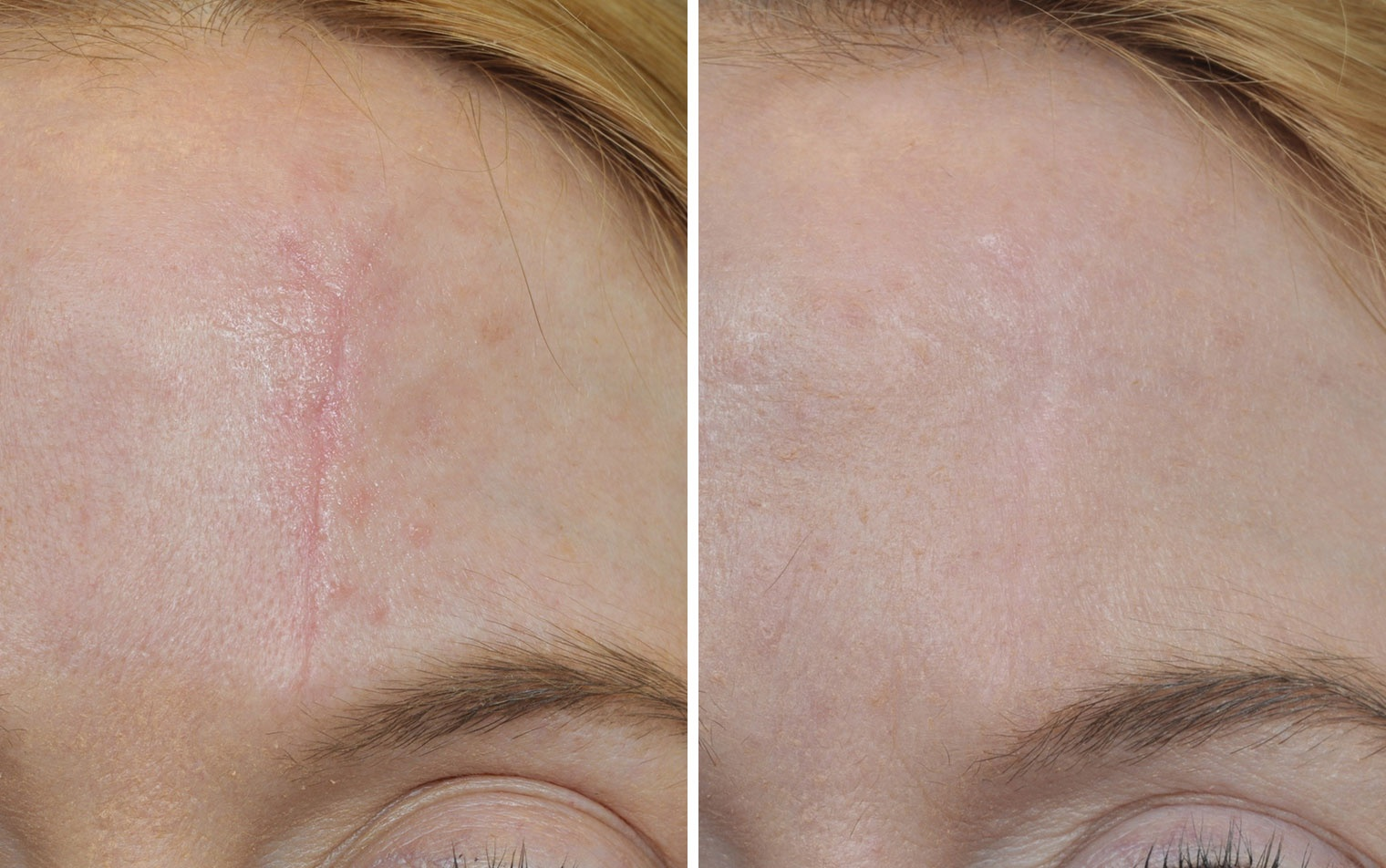 Example of scars and stretchmarks treatment (before and after)